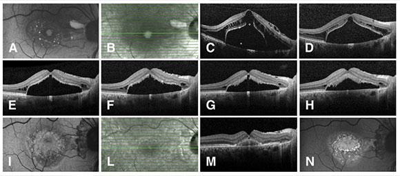 Fig. 1 Autofluorescenza (AF) e tomografia a coerenza ottica (SD-OCT) di un paziente di 35 anni al baseline e durante il follow-up. (A) Al baseline si osservano multipli spots iperaufluorescenti in corrispondenza del distacco maculare sieroso. (B,C) Il corrispettivo OCT mostra una doppia schisi retinica interna ed esterna con un distacco della membrana limitante interna, un foro degli strati esterni (°) e un DNE (*). Immagini seriali OCT dopo 4 (D), 10 (E), 13 (F), 16 (G) mesi dall'intervento chirurgico. Il progressivo riassorbimento del fluido determina una risoluzione della retinoschisi interna ed esterna e in un secondo momento del DNE. Ristabilita l'integrità anatomica retinica (E), si osserva un progressivo allungamento dei segmenti esterni dei fotorecettori che raggiungono la massima lunghezza a 18 mesi di follow-up (H); la corrispondente immagine in AF mostra un iperautofluorescenza granulare (I). OCT (L,M) e AF (N) ottenute a 30 mesi di follow-up mostrano un completo riaccollamento della retina e residua un accumulo subfoveale iperautofluorescente simil lesione pseudovitelliforme.