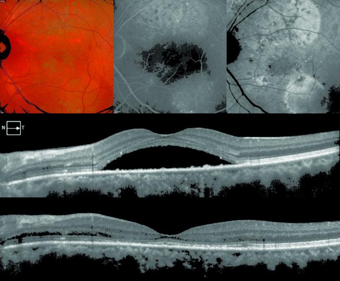"""Caso di un paziente di 36 anni affetto da corioretinopatia sierosa centrale cronica in occhio sinistro e trattato con Eplerenone per 12 settimane. Nella riga superiore sono visibili l'immagine MultiColor, fluorangiografia e angiografia con verde d'indocianina prima dell'inizio del trattamento. Nella riga centrale, l'esame OCT mostra la presenza del fluido sottoretinico prima dell'inizio del trattamento che si è poi riassorbito dopo la terapia (riga inferiore). Cortesia del """"Servizio di Retina Medica & Imaging"""", responsabile Prof. Giuseppe Querques e Prof. Francesco Bandello, U.O. Oculistica, IRCCS Ospedale San Raffaele, Milano."""
