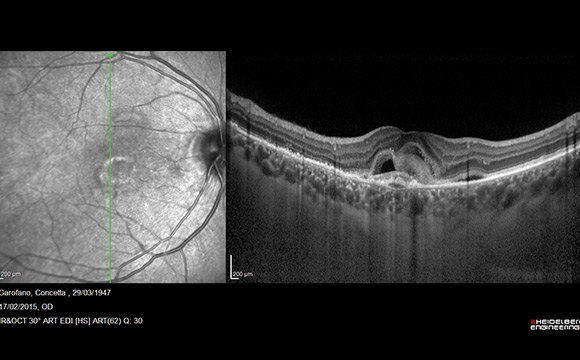 Fig. 1 Esempio di scansione OCT-EDI, con visualizzazione della retina e della coroide fino alla giunzione sclero-coroideale.