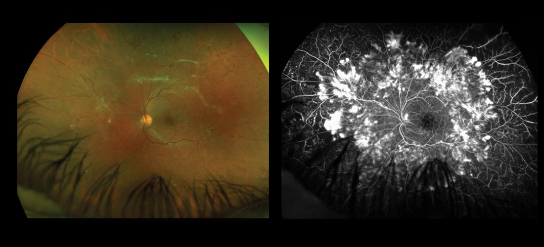 Figg. 1: (a) Retinografia a colori e (b) fluorangiografia Ultra-Widefield (UWF) di paziente di 29 anni affetto da diabete di tipo 1 da 20 anni con grave retinopatia diabetica proliferante. Sono ben evidenti le aree di ischemia retinica confluente e i neovasi caratterizzati da zone di iperfluorescenza e leakage.