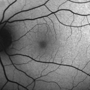 Fig. 2: (a) Fundus autofluorescence (FAF)