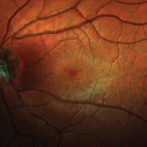 Fig. 2: (b) colour fundus