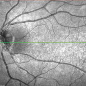 Fig. 2: (c) infrared (IR) e spectral domain OCT di paziente di 26 anni con diabete di tipo 1 da 18 anni senza retinopatia diabetica.