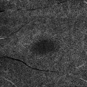 Fig. 2: (f) OCTA, rispettivamente di plesso superficiale, plesso profondo e coriocapillare. Nel plesso profondo si apprezza un'iniziale rarefazione della trama vascolare perifoveale con ingrandimento della FAZ.