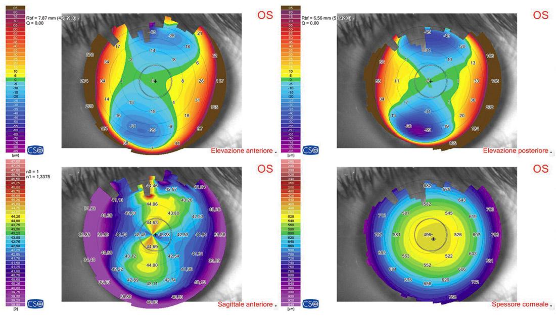 Occhio sinistro: TCC post impianto Visian ICL e creazione lembo con IFS