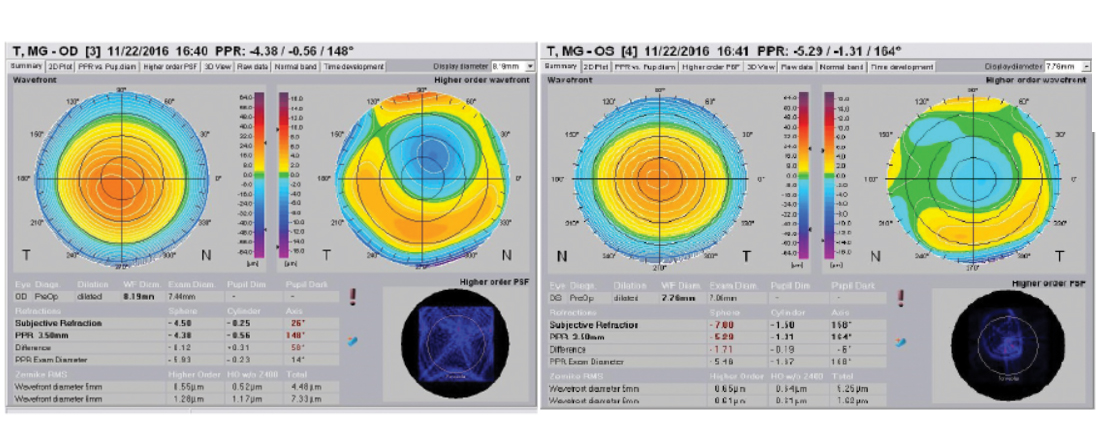 A livello aberrometrico si notano in entrambi gli occhi un'elevata incidenza delle aberrazioni di alto ordine, dovute al trattamento di PRK eseguito in passato, con una zona ottica discretamente piccola, motivo per il quale non è stato consigliato l'impianto di MF-IOL.