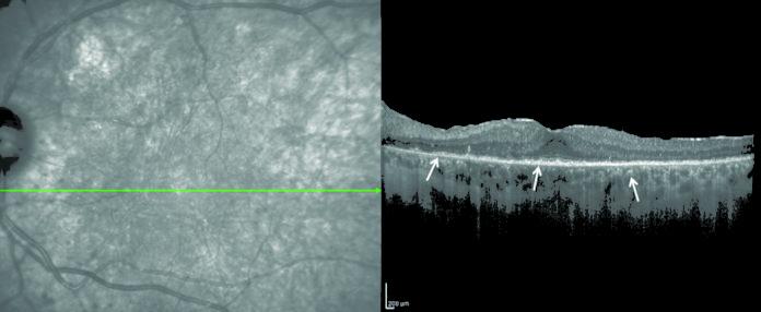 Sindromi masquerades: Optical coherence tomography di un soggetto affetto da linfoma vitreoretinico primario. Gli infiltrati linfomatosi sono evidenziati dalle frecce come materiale granulare iperriflettente sottoretinico e sotto l'epitelio pigmentato.