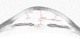anisometropia miopica