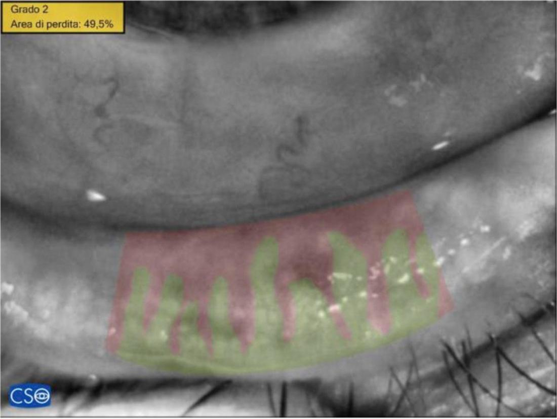 Meibomiografia post ciclo di trattamenti di luce pulsata: la perdita di ghiandole di Meibomio si è ridotta al 49.5%