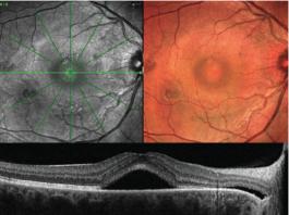 Terapia fotodinamica a dose ridotta vs trattamento laser micro pulsato