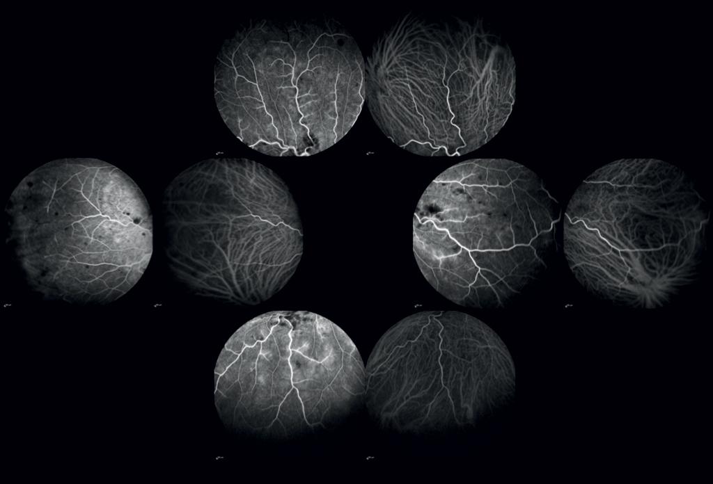 Angiografia con fluoresceina e verde di indocianina dell'occhio destro, periferia retinica a 2-4 minuti dall'iniezione dei coloranti.