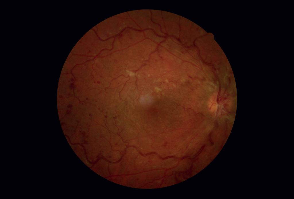 Fotografia del fondo oculare dell'occhio destro.