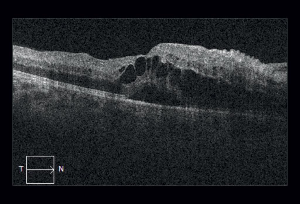 Fig 2 OCT macula dell'occhio destro
