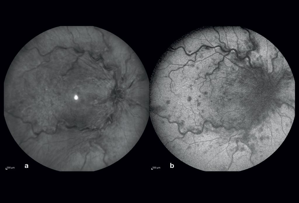 Retinografia ad infrarosso (a) e autofluorescenza blu (b) dell'occhio destro.