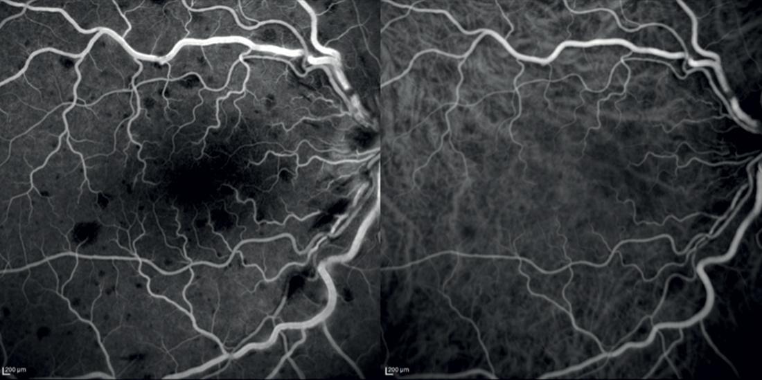 """FA e ICGA occhio destro a circa 1'30"""" dall'infusione di fluoresceina e verde di Indocianina"""