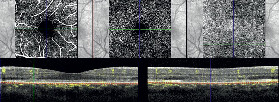 OCTA en-face SCP, DCP, coriocapillare e OCT strutturale con segnale di flusso occhio destro.