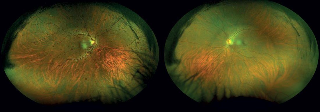 Foto del fondo a pseudo-colori wide field di entrambi gli occhi