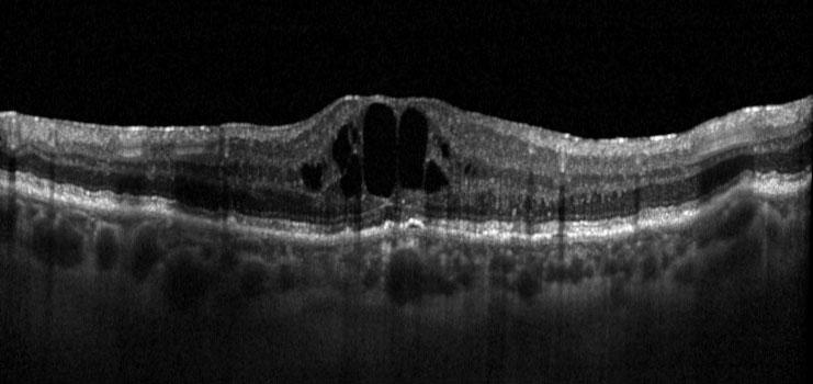 Fig. 1a OCT strutturale di un paziente affetto da EMD con scarsa risposta al precedente trattamento con 3 iniezioni di ranibizumab; il visus è 60 lettere ETDRS (20/63) e lo spessore retinico centrale è 630 µm.