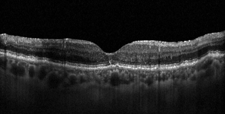 Fig. 1b OCT strutturale dello stesso paziente a distanza di 2 mesi dall'iniezione di desametasone; il visus è 70 lettere ETDRS (20/40) e lo spessore maculare è 238 µm.