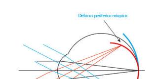 Fig. 4. Rappresentazione del defocus periferico miopico (rosso) e ipermetropico (blu) quando viene osservato un oggetto posto all'infinito ottico e la cui immagine cade in fovea.