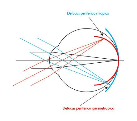 Fig. 4 Rappresentazione del defocus periferico miopico (rosso) e ipermetropico (blu) quando viene osservato un oggetto posto all'infinito ottico e la cui immagine cade in fovea.