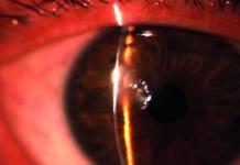 Figura 1. Infezione corneale mista da acanthamoeba, mycobatteri e micrococchi al biomicroscopio (A).