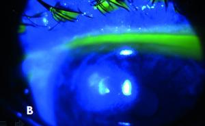 Figura 1B. Infezione corneale mista, dopo colorazione con fluoresceina (B).