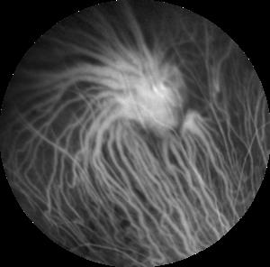 Figura 7. Angiografia al verde d'indocianina della lesione a circa 2 minuti dall'iniezione del colorante.