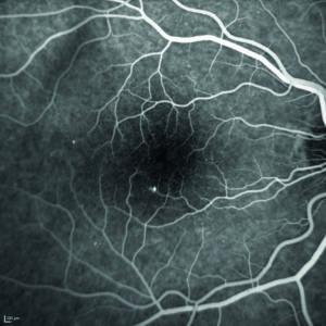 Fig. 5. Angiografia con fluoresceina, fase artero-venosa (a, b) e fasi tardive (c, d).