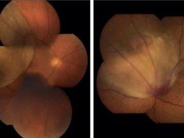 Melanoma oculare