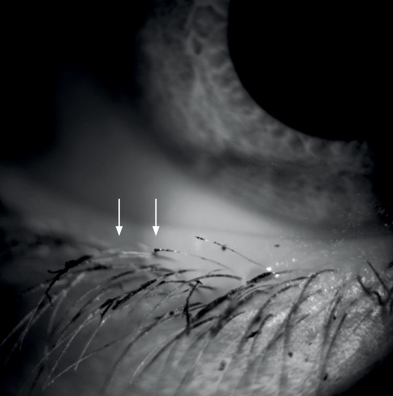 Cosmetici e sindrome da occhio secco